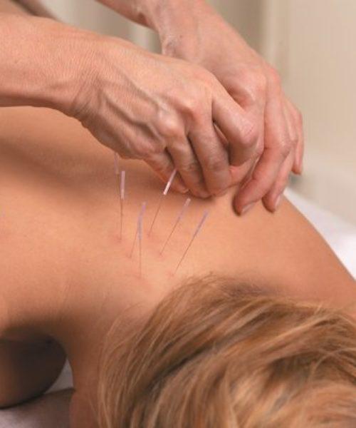 Akupunktør som setter nåler på en pasient